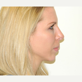 25-34 year old woman treated with Rhinoplasty after 3371775