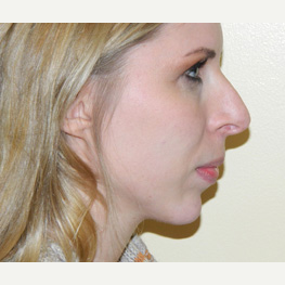25-34 year old woman treated with Rhinoplasty before 3371775