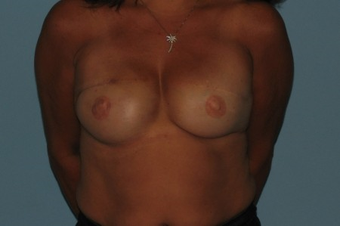 Patient had a Breast Reconstruction. after 963252