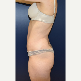 35-44 year old woman treated with Liposuction after 3734115