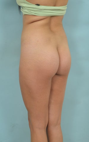 Buttock Augmentation (BBL) 1126890