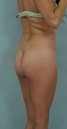 Buttock Augmentation (BBL) before 1126890