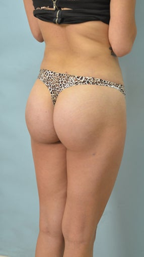 Buttock Augmentation (BBL) after 1126890