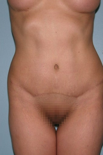 35-44 year old woman treated with Tummy Tuck after 1595917