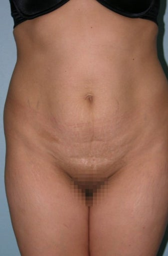 35-44 year old woman treated with Tummy Tuck before 1595917