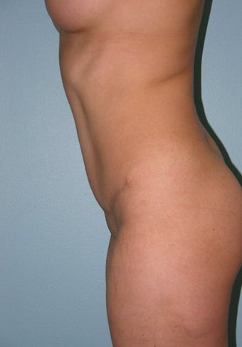 35-44 year old woman treated with Tummy Tuck 1595917