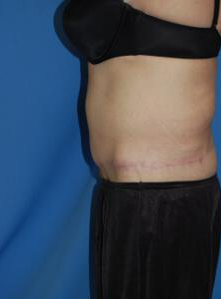 Circumferential Tuck after 863778