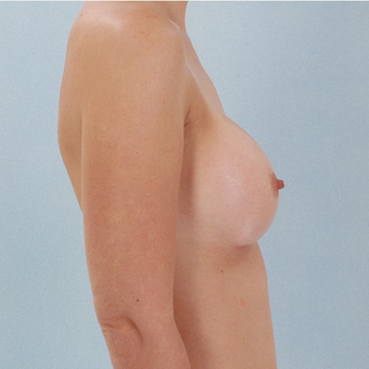 Breast Implants after 3033362