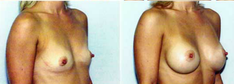 Breast Augmentation  after 575639