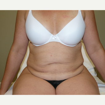 45-54 year old woman treated with Tummy Tuck before 3595818