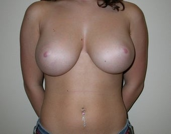 21 Year Old Breast Reduction Patient before 1448260