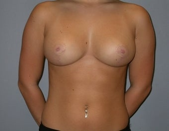 21 Year Old Breast Reduction Patient after 1448260