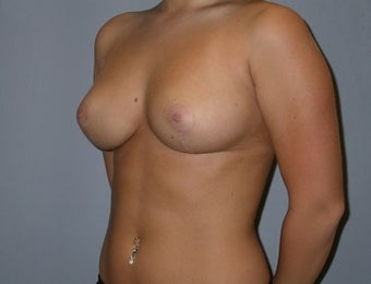 21 Year Old Breast Reduction Patient 1448260