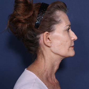 65-74 year old woman treated with Neck Lift (view 2 of 2) after 3175190