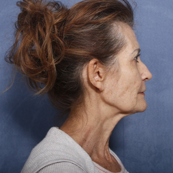 65-74 year old woman treated with Neck Lift (view 2 of 2) before 3175190