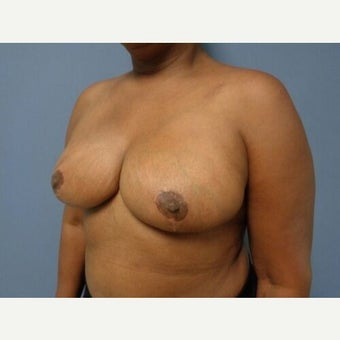 55-64 year old woman treated with Breast Reduction after 2561511