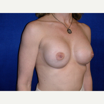 35-44 year old woman treated with Breast Implants after 3727179