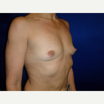 35-44 year old woman treated with Breast Implants before 3727179