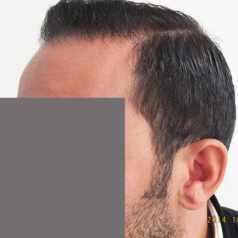 25-34 year old man treated with Hair Loss Treatment 1585978