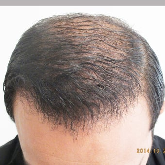 25-34 year old man treated with Hair Loss Treatment after 1585978