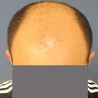 25-34 year old man treated with Hair Loss Treatment before 1585978