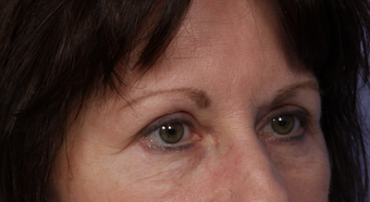 Eyelid Surgery after 302504