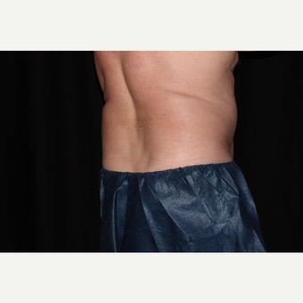 65-74 year old man treated with SculpSure before 3025736