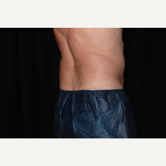 65-74 year old man treated with SculpSure after 3025736