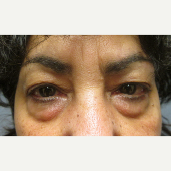 55-64 year old woman treated with Eyelid Surgery before 3802611