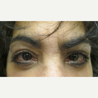 55-64 year old woman treated with Eyelid Surgery after 3802611
