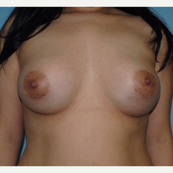 18-24 year old woman treated with Breast Augmentation after 3070734