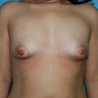 18-24 year old woman treated with Breast Augmentation before 3070734