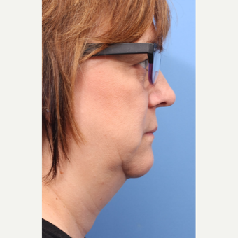 45-54 year old woman treated with CoolSculpting for neck and chin before 2995341