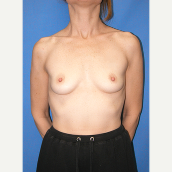 35-44 year old woman treated with Breast Augmentation before 3100587