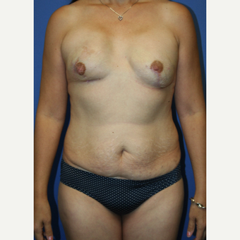 45-54 year old woman treated with Mommy Makeover before 2993989