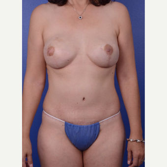45-54 year old woman treated with Mommy Makeover after 2993989