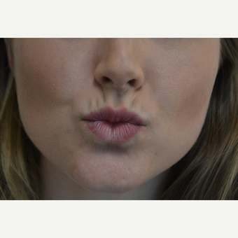 18-24 year old woman treated with Lip Augmentation before 3816522