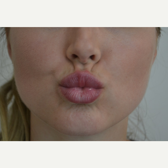 18-24 year old woman treated with Lip Augmentation after 3816522