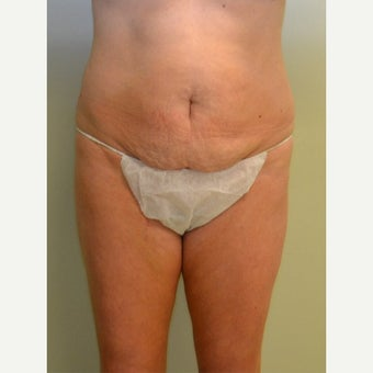 45-54 year old woman treated with Tummy Tuck before 2252443