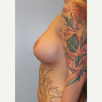 25-34 year old woman treated with Breast Implants after 3692156