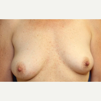 46 year old woman with a bilateral breast augmentation before 3075959
