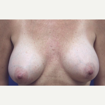 46 year old woman with a bilateral breast augmentation after 3075959