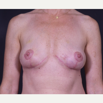 35-44 year old woman treated with Breast Implant Removal after 2839773