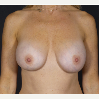 35-44 year old woman treated with Breast Implant Removal before 2839773