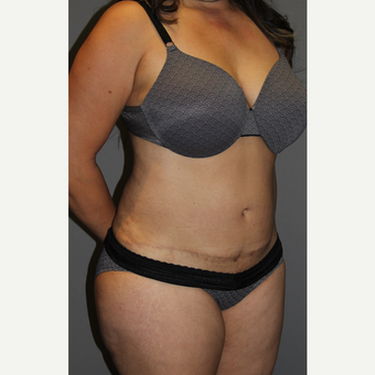 45-54 year old woman treated with Tummy Tuck after 3129178
