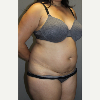 45-54 year old woman treated with Tummy Tuck before 3129178