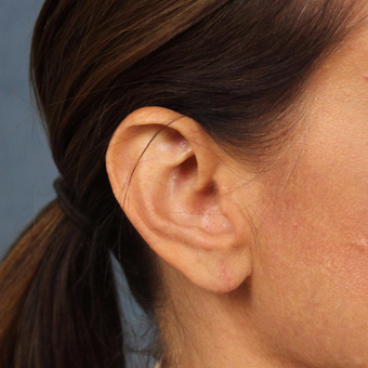 Ear Lobe Lift for recurrent droopiness of earlobes and heavy earrings after 3623421