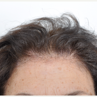 45-54 year old woman treated with Hair Transplant before 3032563