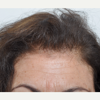 45-54 year old woman treated with Hair Transplant after 3032563