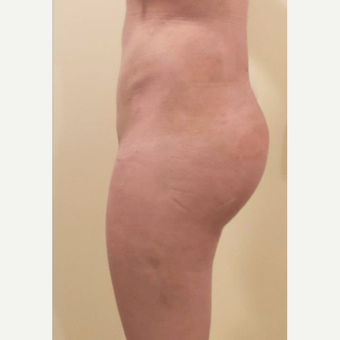 25-34 year old woman treated with Butt Implants after 3340682